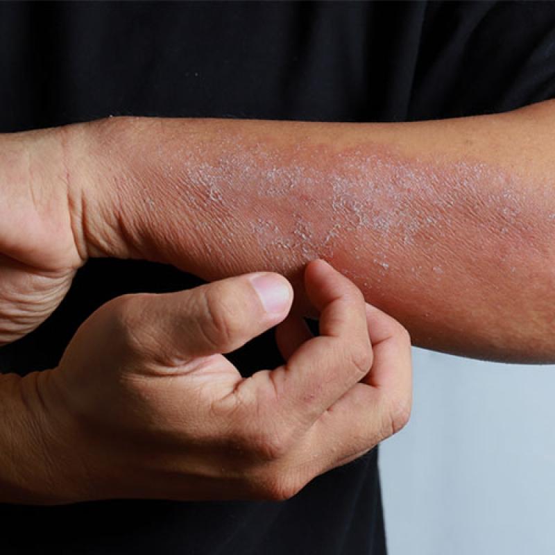 Dermatologia online